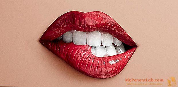 Inflamación de los labios: causas, tratamiento y prevención.