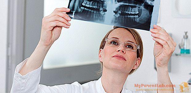 Рентгенограми від стоматолога: тільки при необхідності